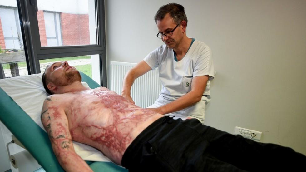 Hombre quemado sobrevive gracias al trasplante de la piel de su gemelo